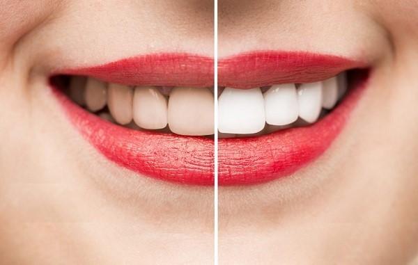 Tẩy trắng răng không cẩn thận có thể dẫn đến hoại tử lợi