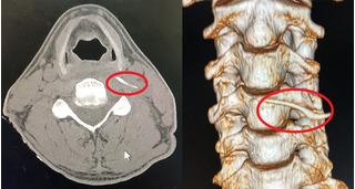 Chữa hóc xương bằng 'nước thần', người đàn ông ở Nghệ An nhập viện