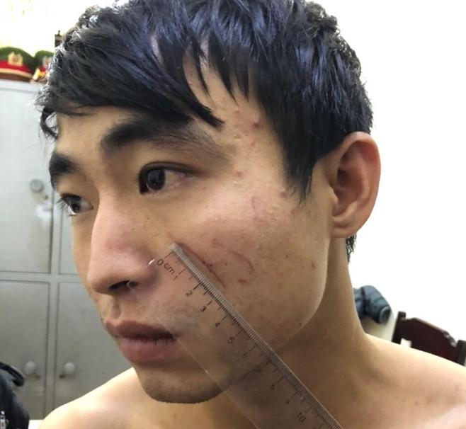 Phẫn nộ lời khai của kẻ sát hại bạn gái tại nhà nghỉ ở Thanh Hóa