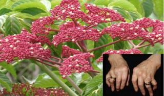 Lương y chỉ bài thuốc chữa chứng phong thấp từ cây gối hạc