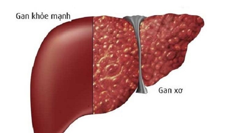 Viêm gan B có chữa khỏi được không