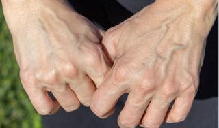 3 dấu hiệu trên bàn tay báo hiệu gan đang kêu cứu
