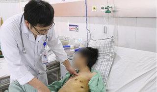 Nam thanh niên bị tràn khí màng phổi nguyên nhân hàng triệu người mắc