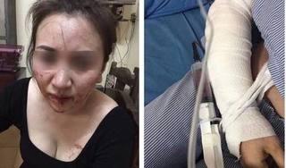Xôn xao clip người đàn ông đánh vợ dã man đến nhập viện