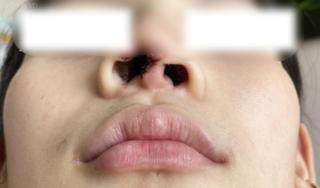 Thiếu nữ 16 tuổi biến dạng mũi khi phẫu thuật thẩm mỹ ở spa