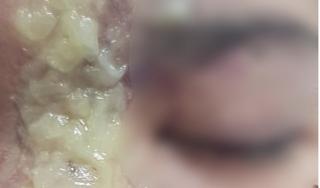 Tiêm filler nâng mũi với giá 1,5 triệu đồng, bé gái 15 tuổi bị mù mắt