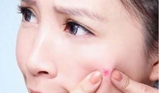 4 loại rau thanh mát có tác dụng trị mụn nhọt mà ít ai biết đến
