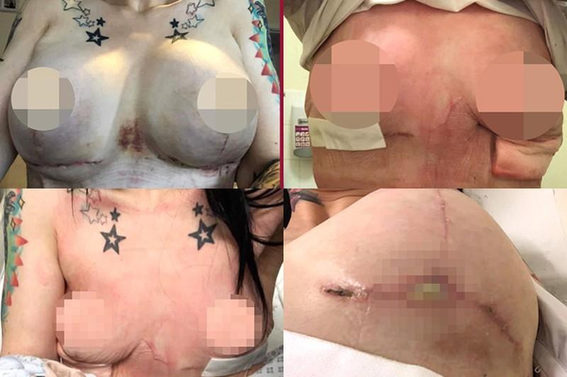 Nâng ngực ở nước ngoài với giá hơn 100 triệu đồng, cô gái 28 tuổi phải cắt bỏ 2 bên vú