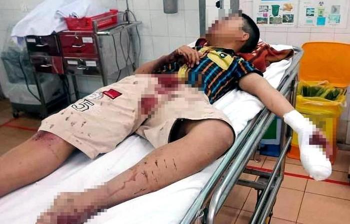 Dùng bột diêm chế pháo đốt, bé trai 14 tuổi thương tích nặng