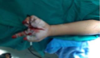 Bé trai Hưng Yên mất 2 ngón tay vì nhặt