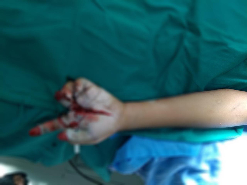Bé trai Hưng Yên đâu đớn mất 2 ngón tay vì pháo nổ