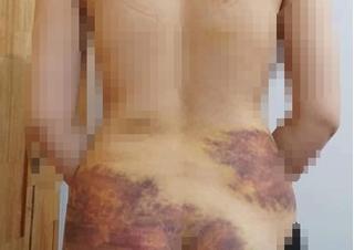 Vụ nghi chồng bạo hành, ép vợ quan hệ rồi chụp ảnh: Vì đâu nên nỗi?