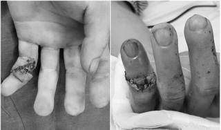 Các bác sĩ Quảng Ninh lần đầu nối thành công đốt ngón tay đứt lìa cho bệnh nhân bị tai nạn