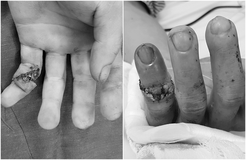 Các bác sĩ Quảng Ninh lần đầu nối thành công đốt ngón tay bị đứt lìa cho bệnh nhân bị tai nạn
