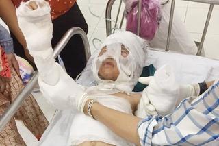 Vụ bé 6 tuổi bị dì ruột tẩm xăng đốt: 'Cháu suốt ngày gọi dì là mẹ Phượng'