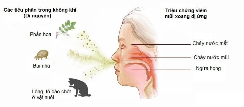 viêm mũi xoang dị ứng