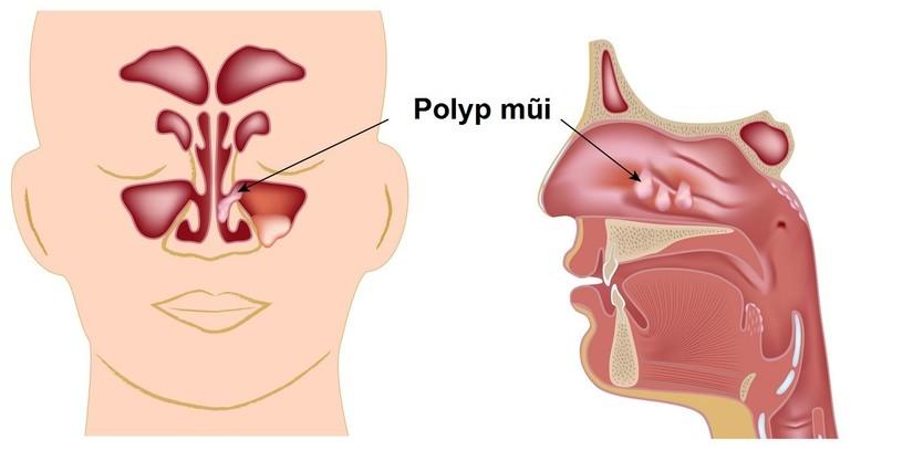 viêm mũi không do dị ứng