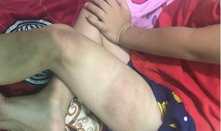 Làm rơi điện thoại, bé 5 tuổi bị cha ruột đánh bầm tím tay, chân