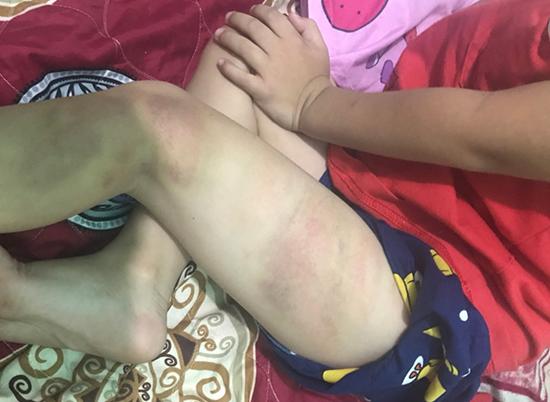 Bé trai 5 tuổi ở Bình Dương bị cha ruột đánh bầm tím tay chân