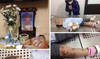 Hà Nội: Nghi án bé gái 3 tuổi bị cha dượng và mẹ đẻ bạo hành đến tử vong
