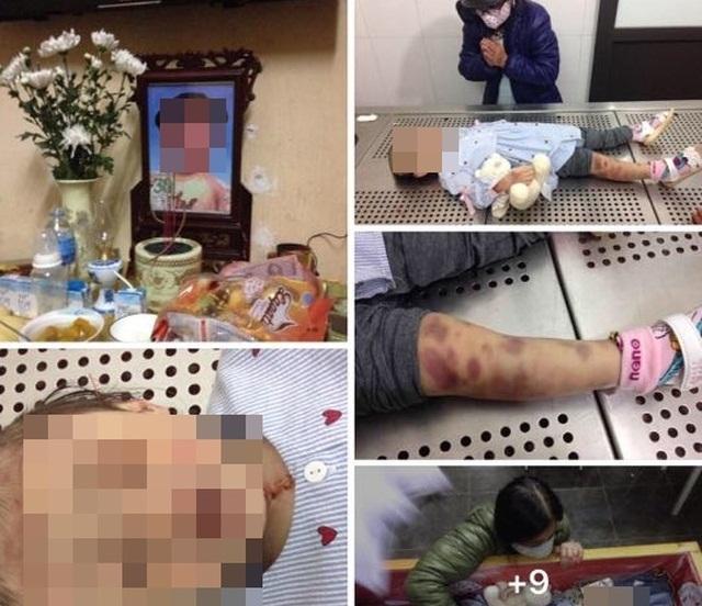 Bắt giữ khẩn cấp mẹ đẻ, bố dượng nghi bạo hành con gái 3 tuổi đến chết