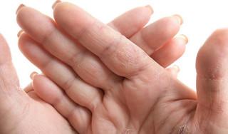 'Lợi bất cập hại' khi tự chế nước rửa tay khô tránh Covid-19