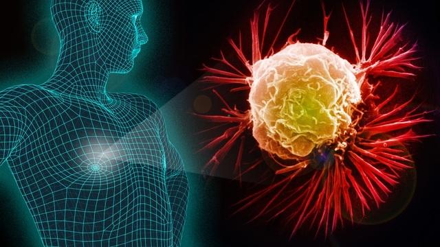 Đột phá mới trong cách chữa trị ung thư