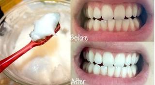 Bí quyết từ thiên nhiên để có hàm răng trắng sáng ngay tại nhà