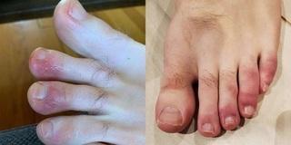 Triệu chứng lạ xuất hiện ở ngón chân của bệnh Covid-19