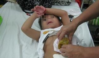 Sợ đến bệnh viện mùa dịch Covid-19, 2 bệnh nhi suýt chết vì vỡ ruột thừa