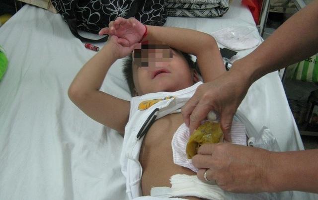Sợ dịch Covid-19, 2 bệnh nhi suýt chết vì vỡ ruột thừa