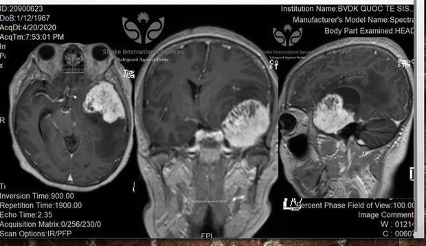 Bác sĩ hoảng hốt trước khối u não to bất thường của đồng nghiệp