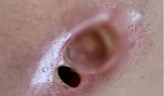 Ngực thủng lõm sâu chỉ vì tiêm silicon 'nâng cấp' vòng 1
