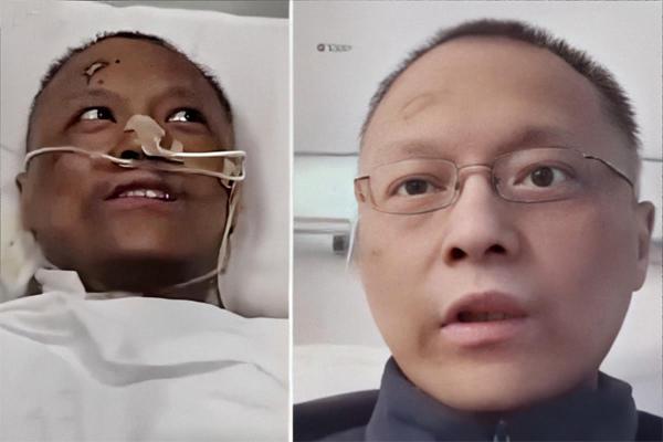 Diễn biến tình hình hai bác sĩ Trung Quốc đổi màu da vì mắc Covid-19
