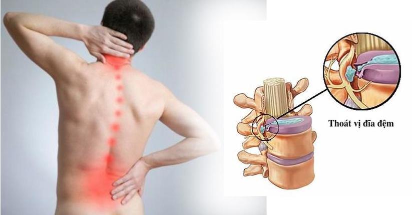 thuốc trị bệnh xương khớp