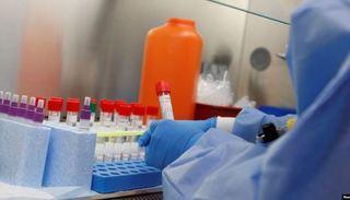 Tin tức thế giới 30/4: Mỹ sắp cấp phép thuốc điều trị Covid-19