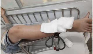 Những tai nạn đáng tiếc khi trẻ nghỉ học ở nhà tránh dịch Covid-19