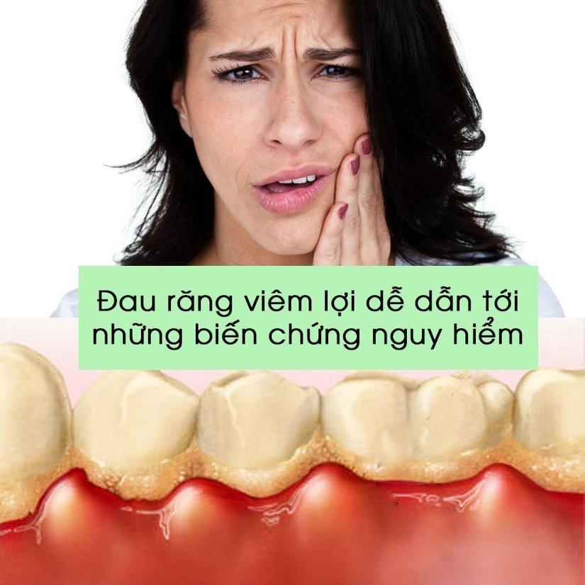Cách chữa đau nhức răng tại nhà