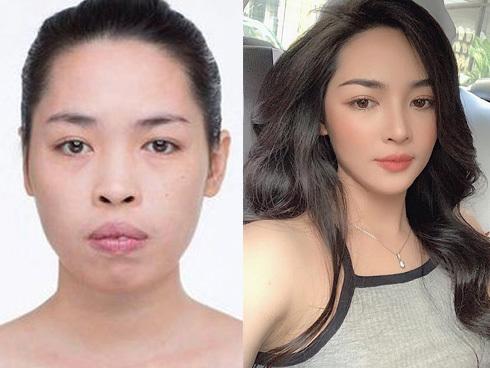 'Siêu phẩm thẩm mỹ Nam Định': 'Sau khi xinh đẹp, tôi có đại gia ngỏ lời' 2
