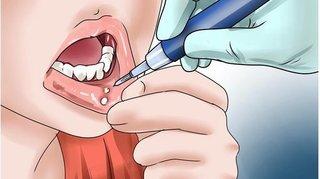 10 cách chữa nhiệt miệng tại nhà an toàn