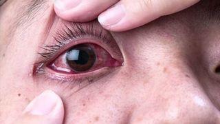 Virus corona có thể tồn tại trong mắt người tới 20 ngày