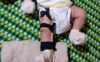 Người cha nghi đạp gãy chân bé sơ sinh vì 'quấy khóc' khai gì?
