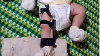 Người bố bị tố đánh con 2 tháng tuổi gãy chân khai gì?