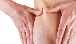 Cách chữa rạn da hiệu quả tại nhà