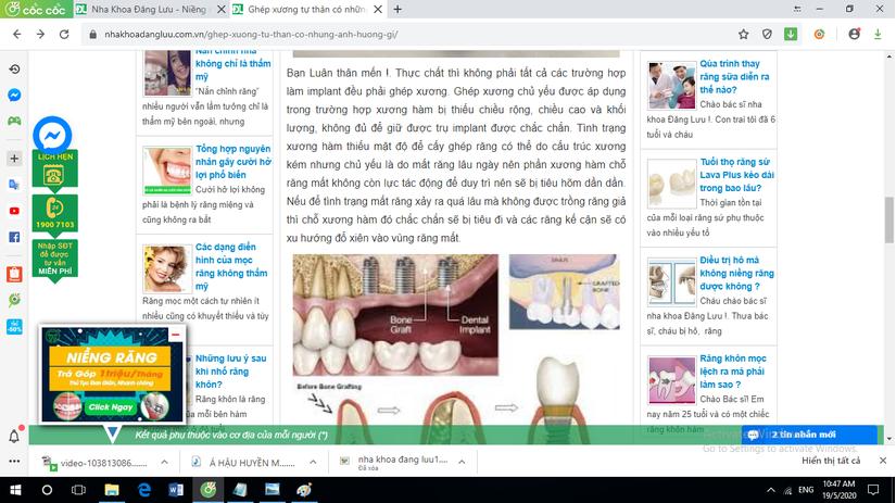 Hệ thống nha khoa Đăng Lưu quảng cáo dịch vụ không được cấp phép