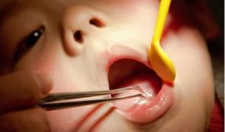 Bé gái 7 tháng tuổi suýt chết vì ăn cháo lươn