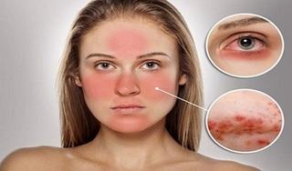 Cách chữa dị ứng da mặt nhanh nhất bằng dân gian