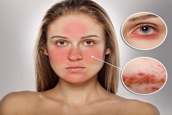 Cách chữa dị ứng da mặt nhanh nhất