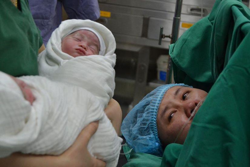 Cứu sản phụ sinh đôi thai IVF bị tiền sản giật nặng 3