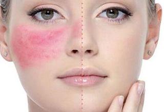 Top 5 cách chữa dị ứng da mặt tại nhà hiệu quả tức thì